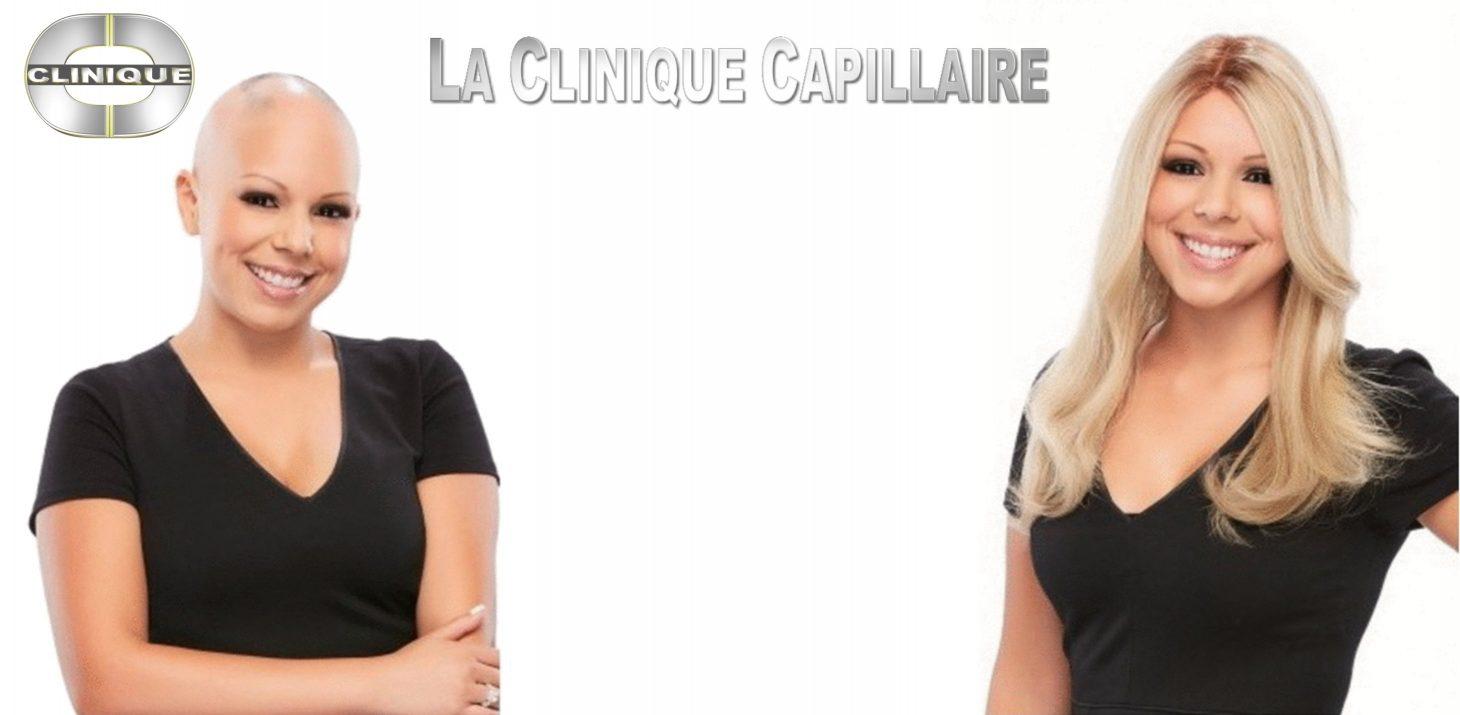 Perruque Cancer: Top Qualité, Vaste Sélection,