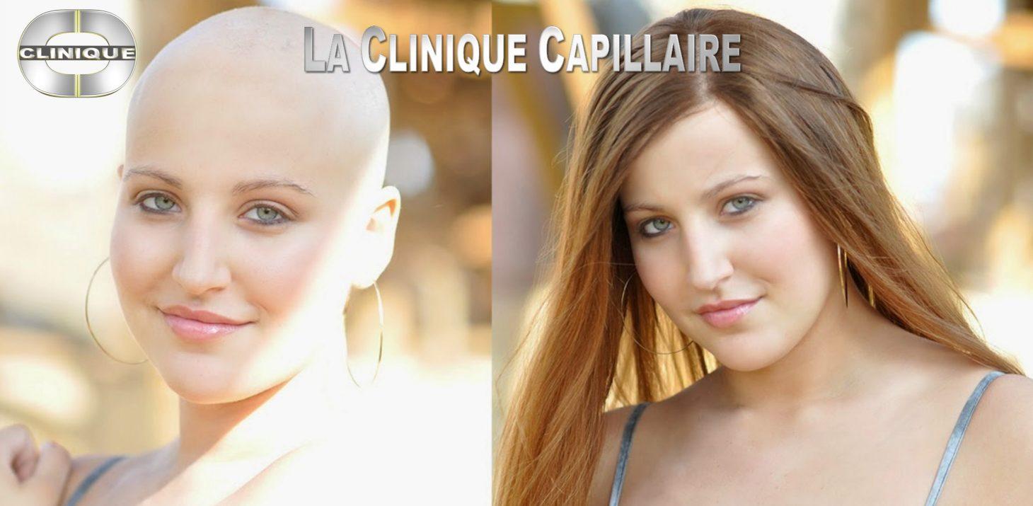 Perruque alopécie: Top Qualité, Vaste Sélection,