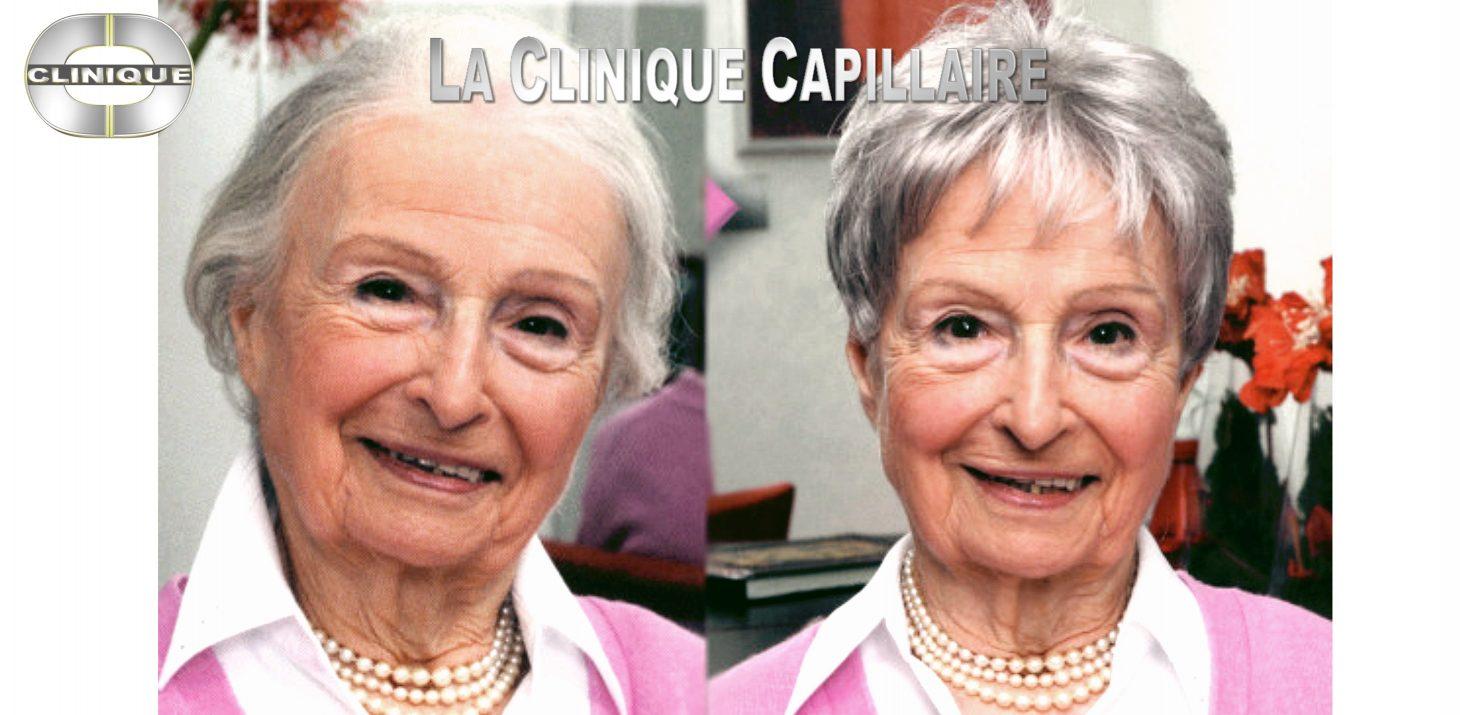 Seins - Mdecine et chirurgie esthtique Paris