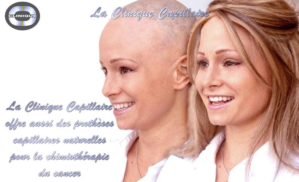 La Clinique Capillaire: Perruque Volumateur